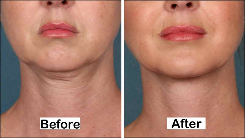 How to Make Up for Your Neck Skin